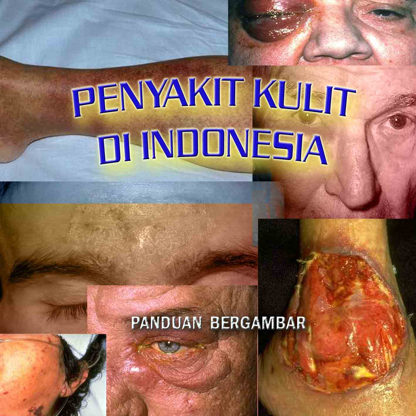 PENYAKIT KULIT DI INDONESIA