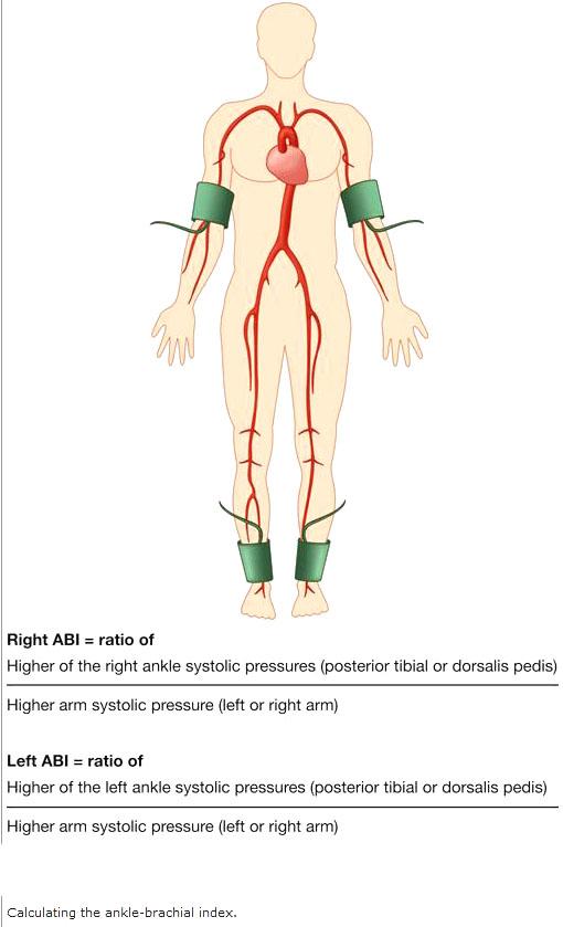 [Brachial plexus injury brace dynamic elbow splint noa ...